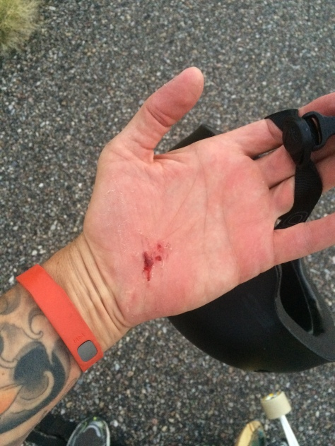 """All too common """"road rash."""" Wear gloves...or don't fall. Either way is good for your skin."""